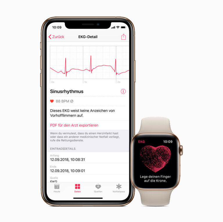 Apple Released watchOS 5.2 With ECG Support For Hong Kong And European Countries